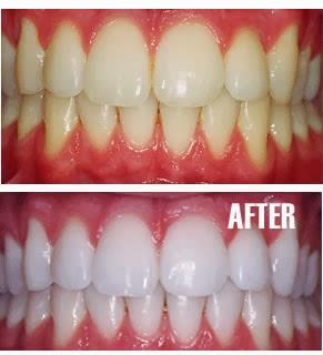 Cara Memutihkan Gigi Secara Alami Blog Tukang Import